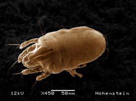 Image of a dust mite/c: Hohenstein Institute